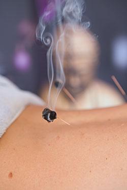 Akupunktur mit Moxibustion